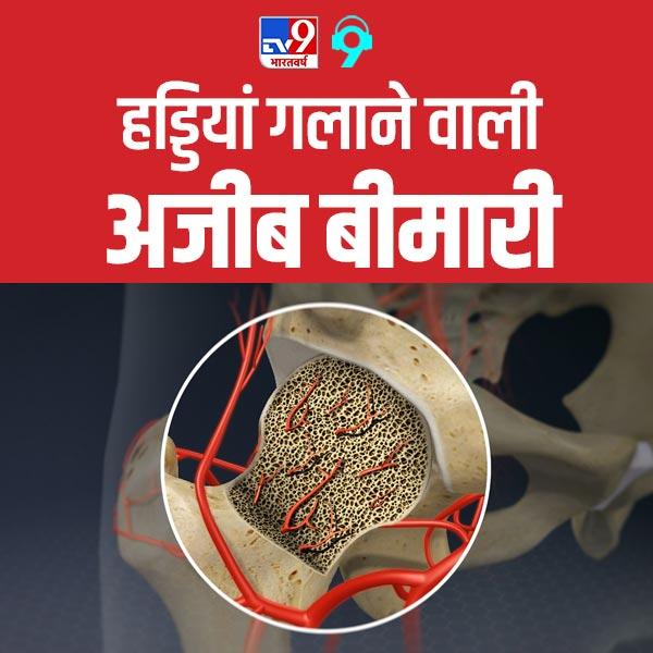 जानिए इंसानों की हड्डियां गलाने वाली एवैस्कुलर नेकरोसिस बीमारी के बारे में